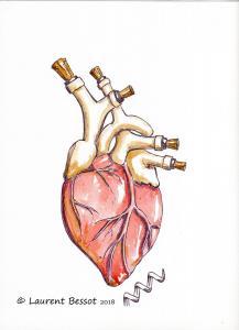 Laurent-Bessot-arteres-bouchees
